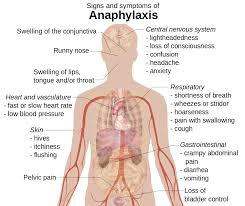 anaphylaxis, asthma life threatening, allergy
