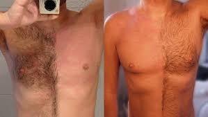 body hair, skin, cell