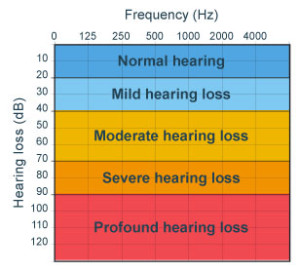 level-of-hearing-loss