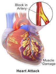 Myocardial Infarction, MI,  heart attack, plaque, cholesterol, blood presssure